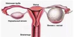 Киста левого яичника лечение