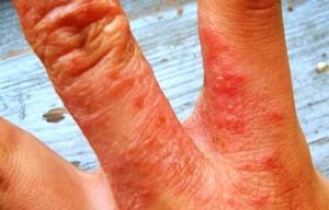 Нейродермит на руках - чем лечить