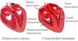 Признаки гипертрофии левого желудочка