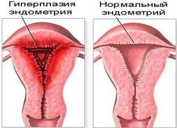 Хронический эндометриоз