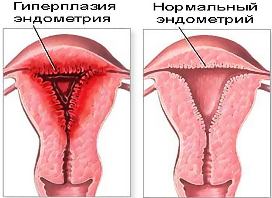 Эндометрий с фиброзом стромы