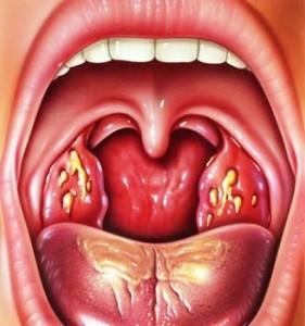 ангина чем лечить горло