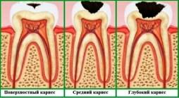 глубокий кариес зубов
