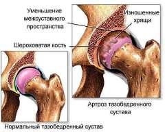 Хирургическое лечение коксартроза
