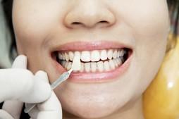 Реставрация зубов с помощью виниров
