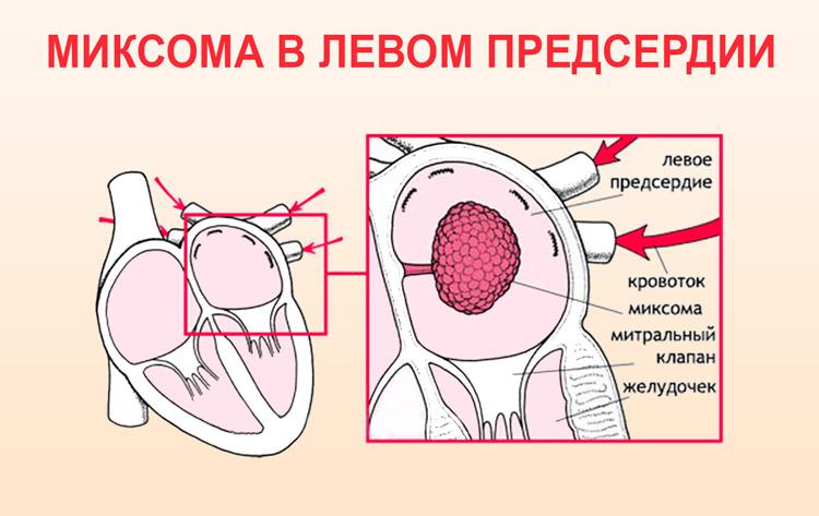 Миксома – опухоль мягких тканей