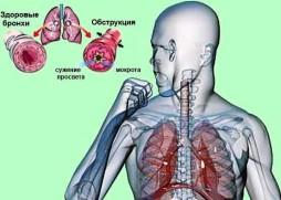 рецидивирующий обструктивный бронхит
