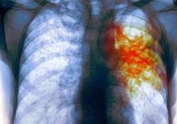 Туберкулез: описание. симптомы и диагностика