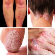 Вредные привычки и травмы при псориазе: опасности и риски